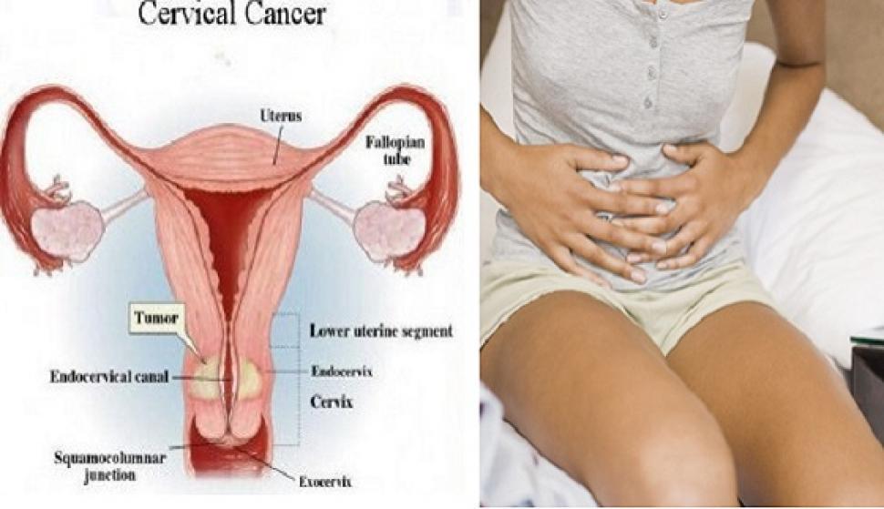 8 simptome ale cancerului de col uterin
